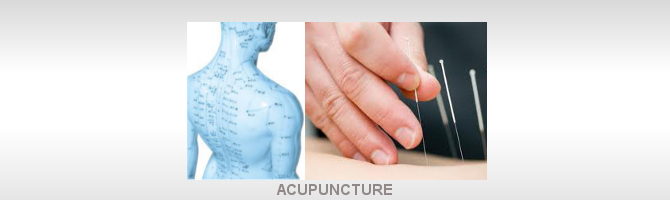 Acupuncture Castle Hill